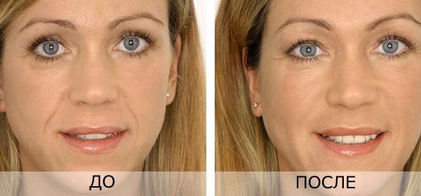 Косметолог. Ін'єкції краси, зображення 1